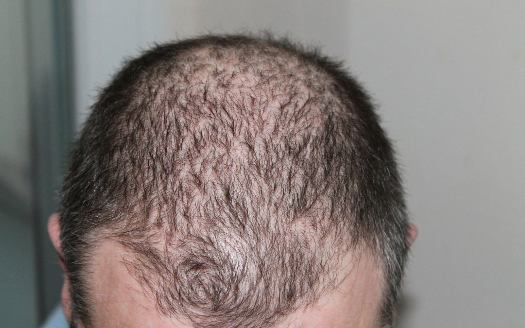 Vertex cheveux