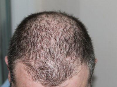 Vertex cheveux : une préoccupation masculine